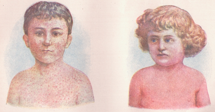 Measles_and_Scarlet_Fever_(3796080398)_cs (1)